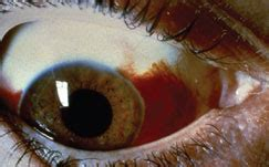 Subconjunctival Hemorrhage Causes - American Academy of