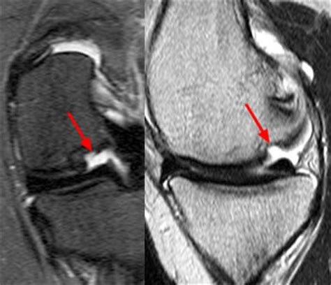Unstable Osteochondritis Dissecans of the Medial Femoral